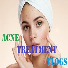 Acne Treatment Vlogs