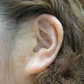 耳垢そうじ/earwax