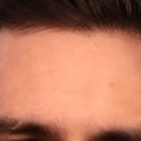 Brendon Urie's Forehead