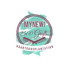 MyNewI Haartransplantation Deutschland