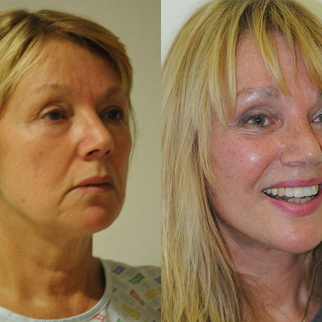 Back in time: 66 years old patient after a vertical facelift and upper and lower blepharoplasty. ♦️contact: melissa@drcalabria.com ♦️www.drcalabria.com ♦️tel: 3107770069 #drrenatocalabria #facelift #nonsurgicalfacelift #necklift #blepharoplasty #browlift #fatgrafting #beforeandafter #beforeafter #cosmeticsurgery #faceliftexpert #celebrity #kimkardashian #kyliejenner #lasers #fillers #botox #dubai🇦🇪 #qatar🇶🇦 #abudhabiblogger #beautybloggers #chirurgiaplastica #cirurgiaplastica #chirurgieesthetique #plastischechirurgie #milano🇮🇹 #viamontenapoleone #transformationtuesday