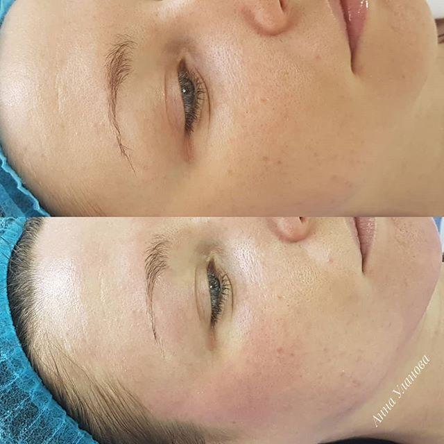 Bb Glow Treatment __________________ Результат после проведения процедуры : 1️⃣Эффект лёгкого bb крема 2️⃣Сияющий, ровный цвет лица 3️⃣Осветление пигментации 4️⃣Сужение пор 5️⃣Увлажнение и обновление кожи 6️⃣Защита от излишнего воздействия ультрафиолета  7️⃣Уменьшение количества мелких морщин 8️⃣Камуфлирование тёмных кругов под глазами  ____________________ Коктейль воздействует на кожу в течении двух недель после процедуры постепенно осветляя пигментацию и выравнивая цвет лица. _______________ Данная процедура не закрашивает кожу ❗️ Она направлена на лечение и постепенное осветление  _______________ Вопросы и запись 📲 +380931198292 #annaulanovapmu#bbglow#обучениеbbglow#bbglowukraine#bbglowукраина#bbglowчеркассы#bbglowcherkassy#rest_in_cherkassy#сияниекожи#ровноелицо#favorite_cherkassy#красивоелицо#перманентбровейчеркассы#перманентгубчеркассы#перманентглазчеркассы#УлановаАнна
