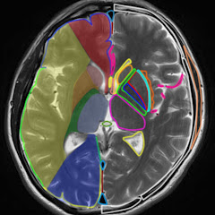 人間ドックの画像診断