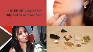 3 STEP Easy DIY Skincare   Oily and Acne Prone Skin   Easy and Effective   Wanderlust Travellers